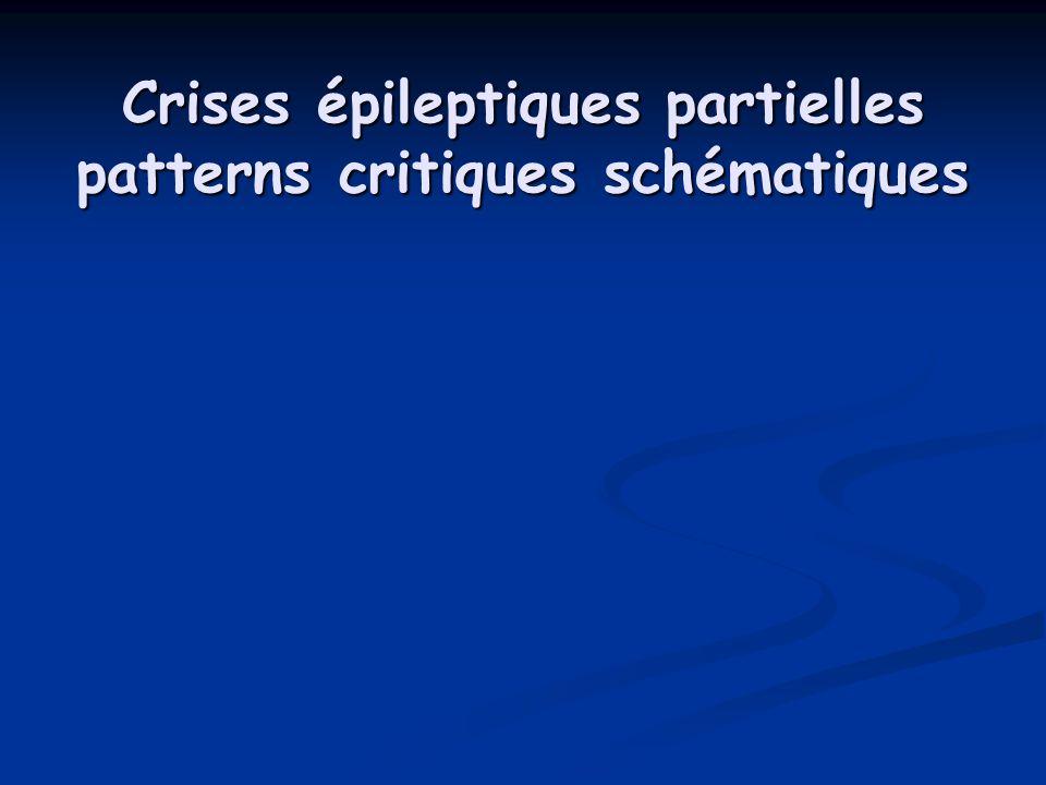 Crises épileptiques partielles patterns critiques schématiques