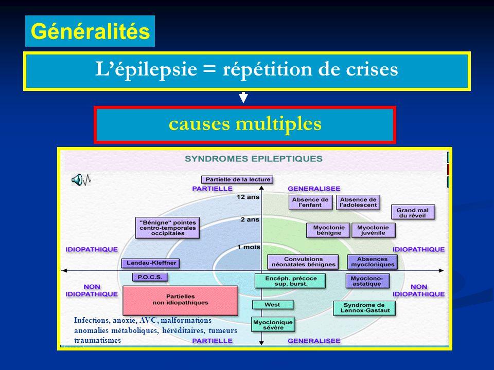 L'épilepsie = répétition de crises