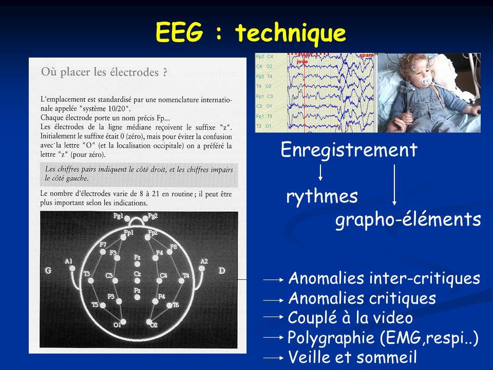 EEG : technique Enregistrement rythmes grapho-éléments