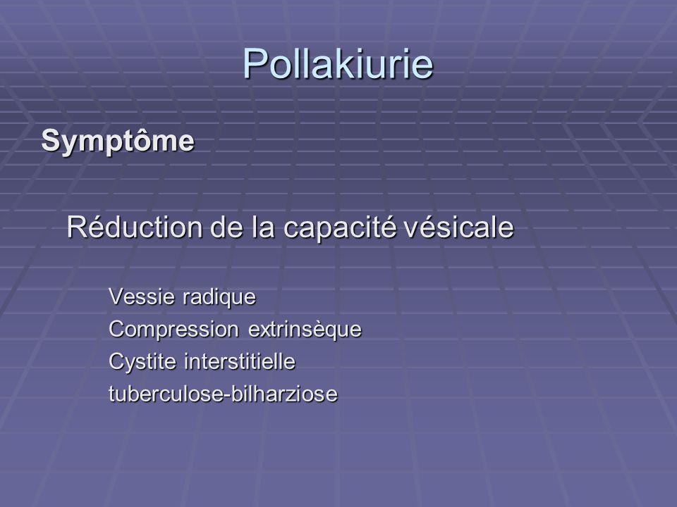 Pollakiurie Symptôme Réduction de la capacité vésicale Vessie radique