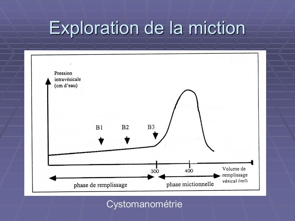 Exploration de la miction