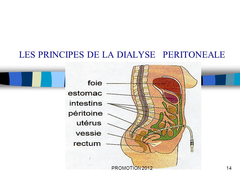 LES PRINCIPES DE LA DIALYSE PERITONEALE