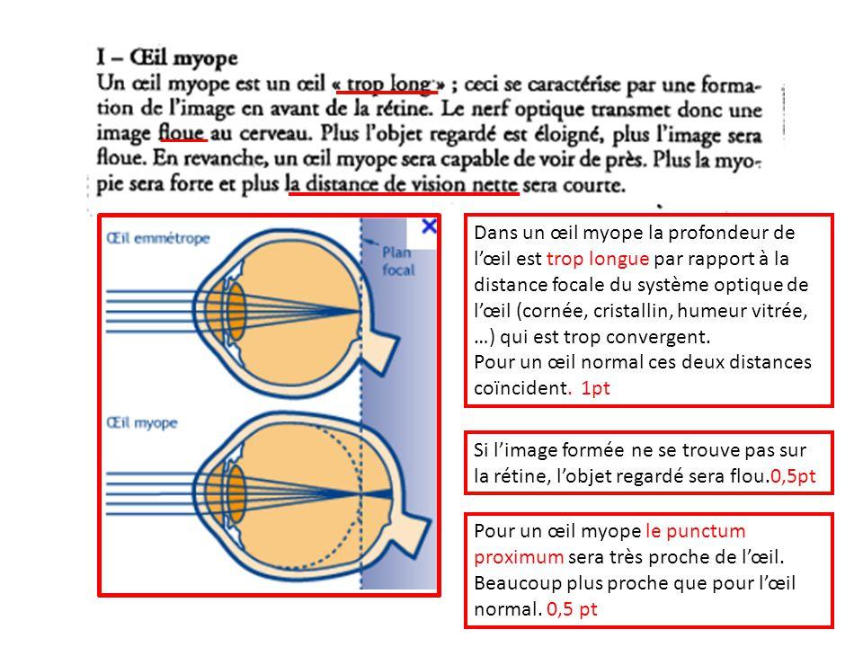 Dans un œil myope la profondeur de l'œil est trop longue par rapport à la distance focale du système optique de l'œil (cornée, cristallin, humeur vitrée, …) qui est trop convergent.