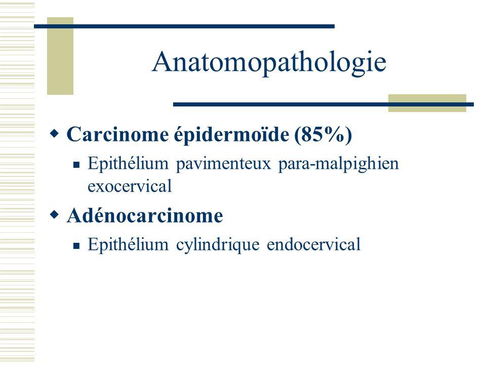 Anatomopathologie Carcinome épidermoïde (85%) Adénocarcinome