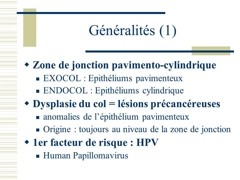 Généralités (1) Zone de jonction pavimento-cylindrique