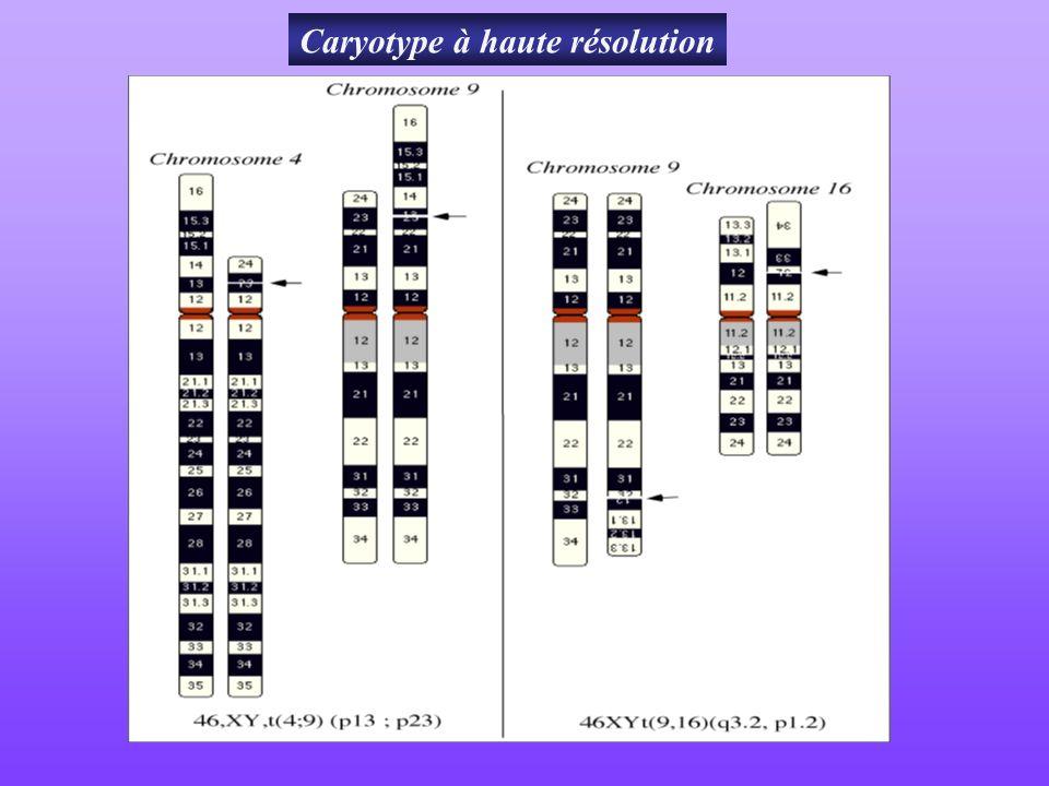Caryotype à haute résolution