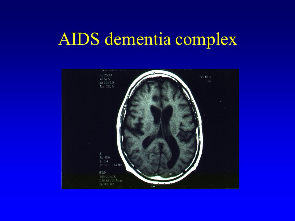 AIDS dementia complex