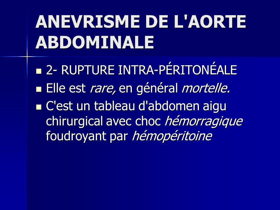 ANEVRISME DE L AORTE ABDOMINALE