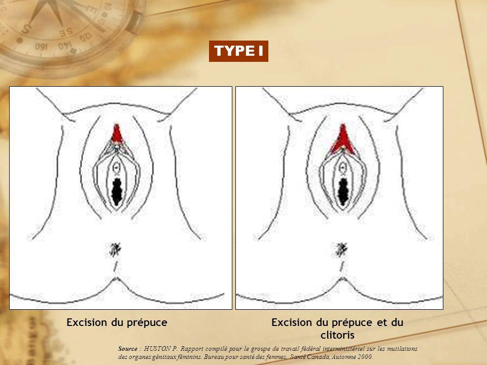Excision du prépuce et du clitoris