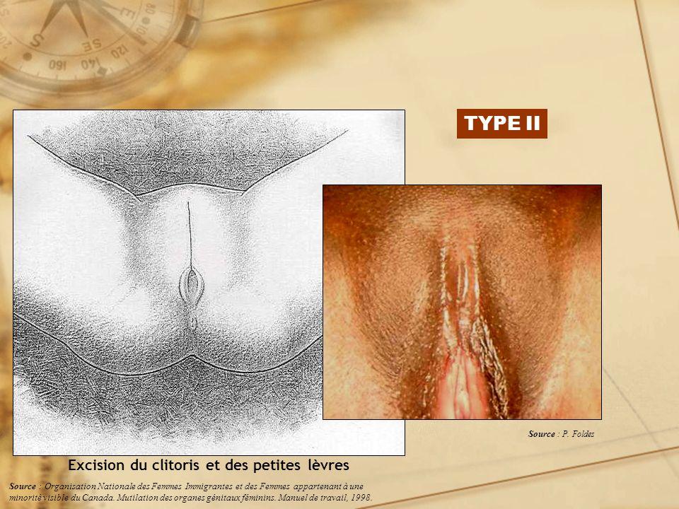 TYPE II Excision du clitoris et des petites lèvres Source : P. Foldes