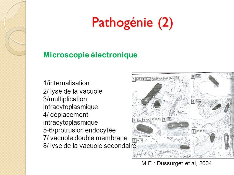 Pathogénie (2) Microscopie électronique 1/internalisation