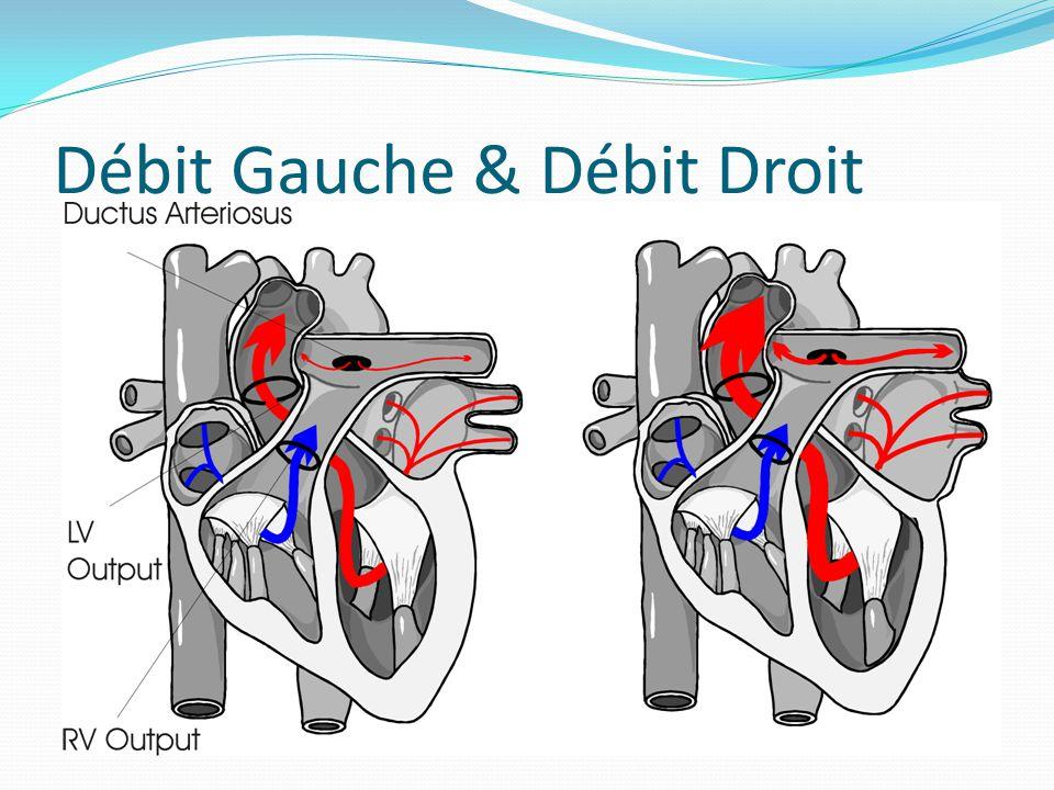 Débit Gauche & Débit Droit