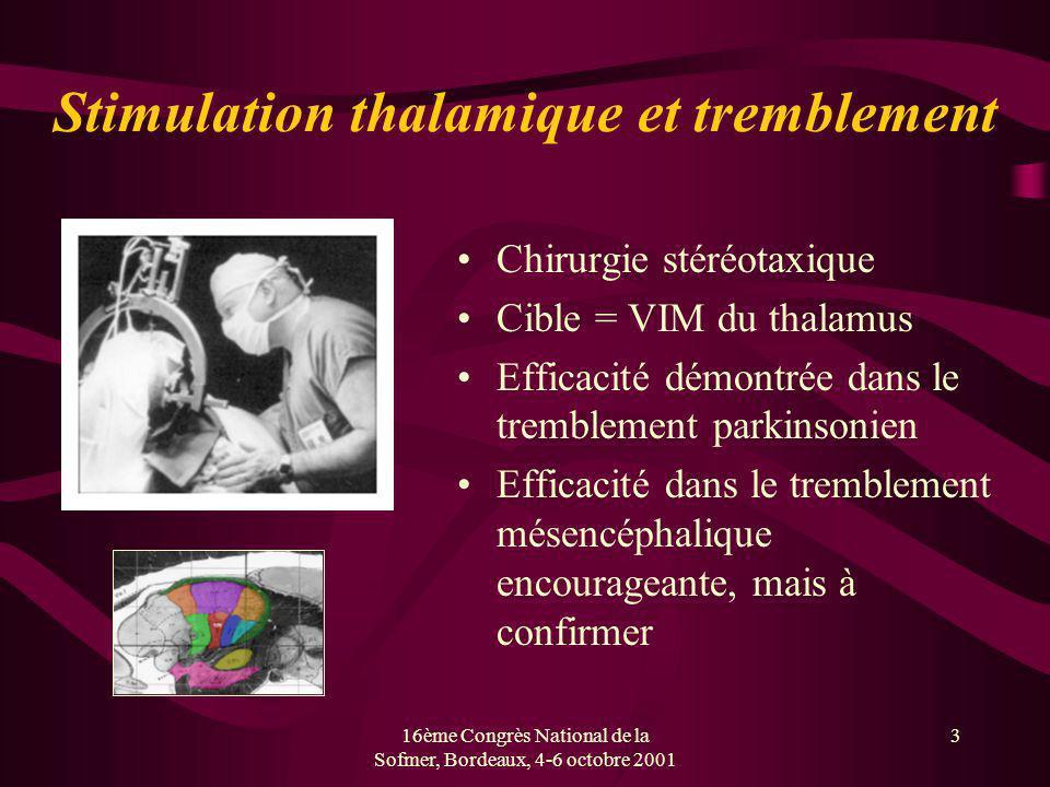 Stimulation thalamique et tremblement