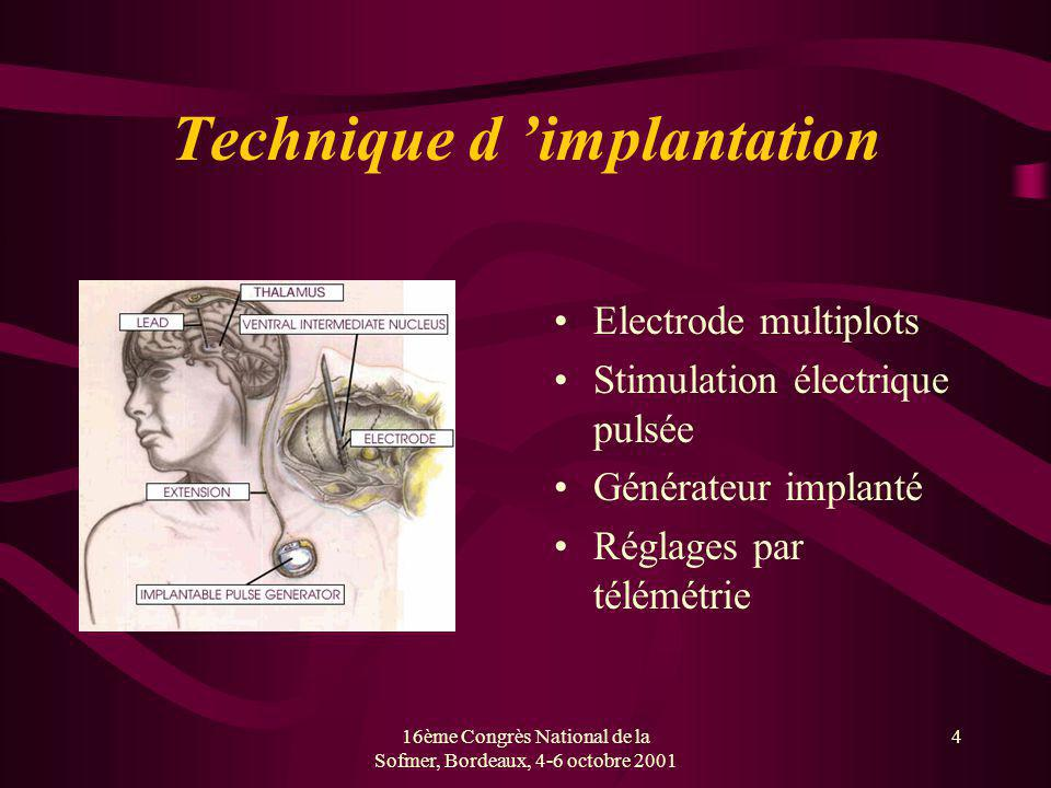 Technique d 'implantation