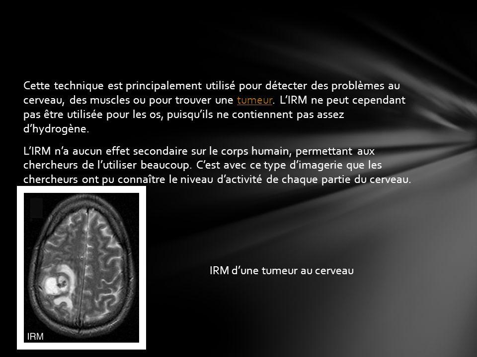 Cette technique est principalement utilisé pour détecter des problèmes au cerveau, des muscles ou pour trouver une tumeur. L'IRM ne peut cependant pas être utilisée pour les os, puisqu'ils ne contiennent pas assez d'hydrogène. L'IRM n'a aucun effet secondaire sur le corps humain, permettant aux chercheurs de l'utiliser beaucoup. C'est avec ce type d'imagerie que les chercheurs ont pu connaître le niveau d'activité de chaque partie du cerveau.