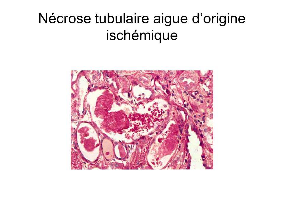 Nécrose tubulaire aigue d'origine ischémique