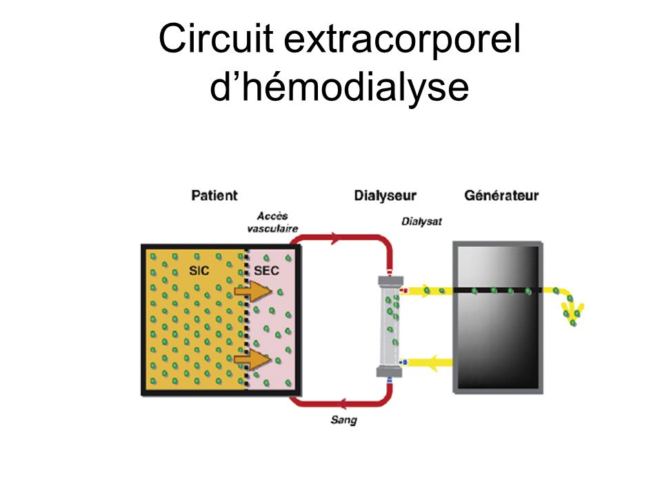 Circuit extracorporel d'hémodialyse