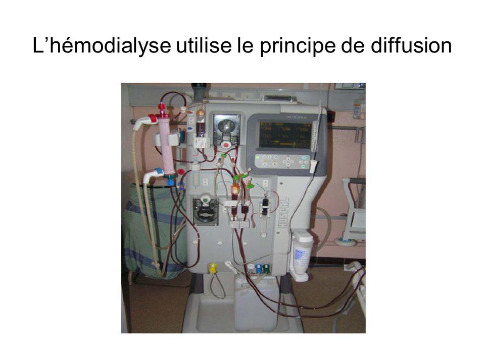 L'hémodialyse utilise le principe de diffusion