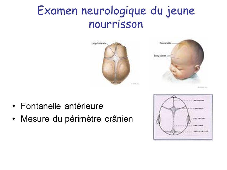 Examen neurologique du jeune nourrisson