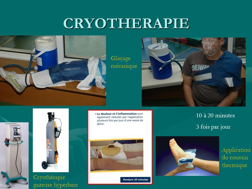 CRYOTHERAPIE Glaçage mécanique 10 à 20 minutes 3 fois par jour