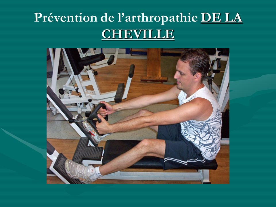 Prévention de l'arthropathie DE LA CHEVILLE