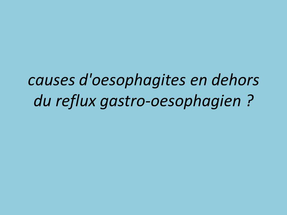 causes d oesophagites en dehors du reflux gastro-oesophagien
