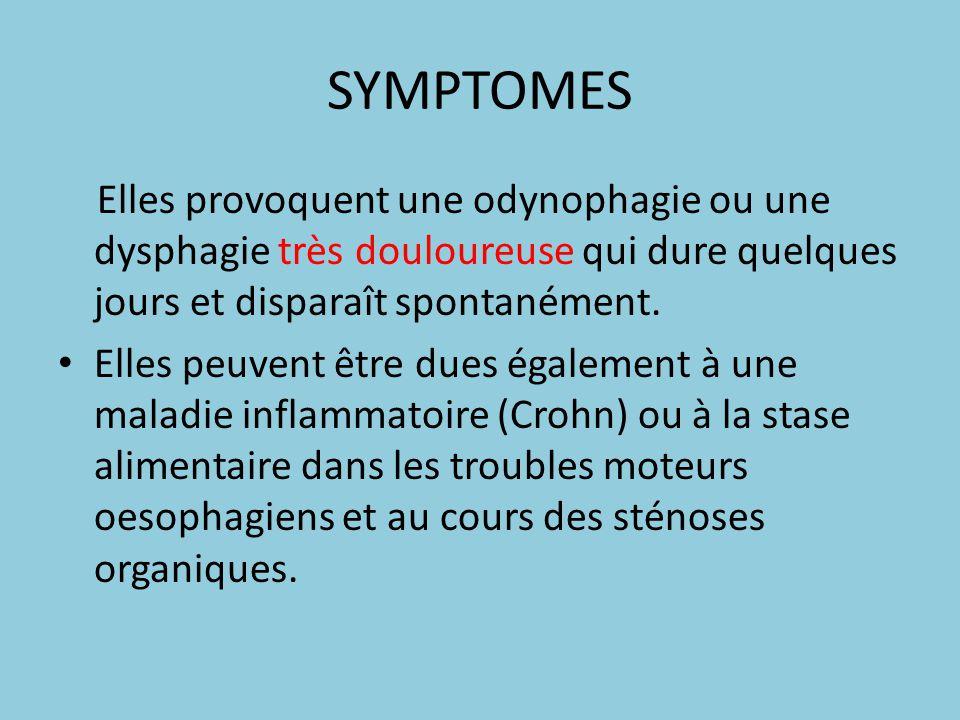 SYMPTOMES Elles provoquent une odynophagie ou une dysphagie très douloureuse qui dure quelques jours et disparaît spontanément.