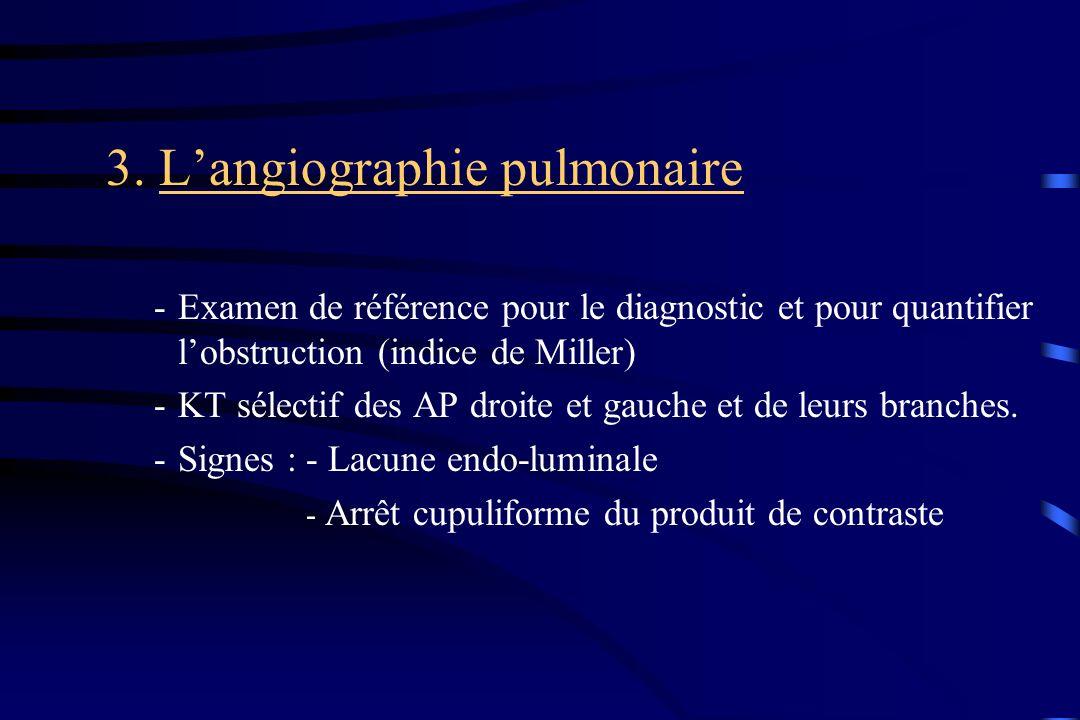 3. L'angiographie pulmonaire