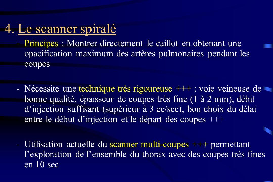 4. Le scanner spiralé Principes : Montrer directement le caillot en obtenant une opacification maximum des artères pulmonaires pendant les coupes.