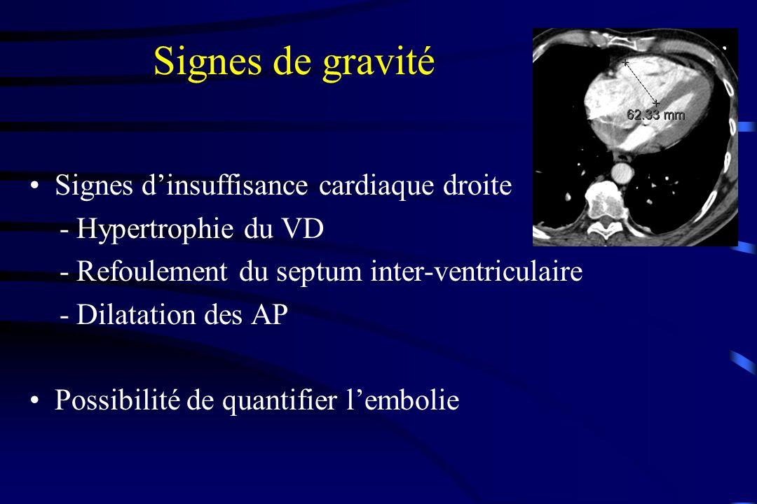 Signes de gravité Signes d'insuffisance cardiaque droite