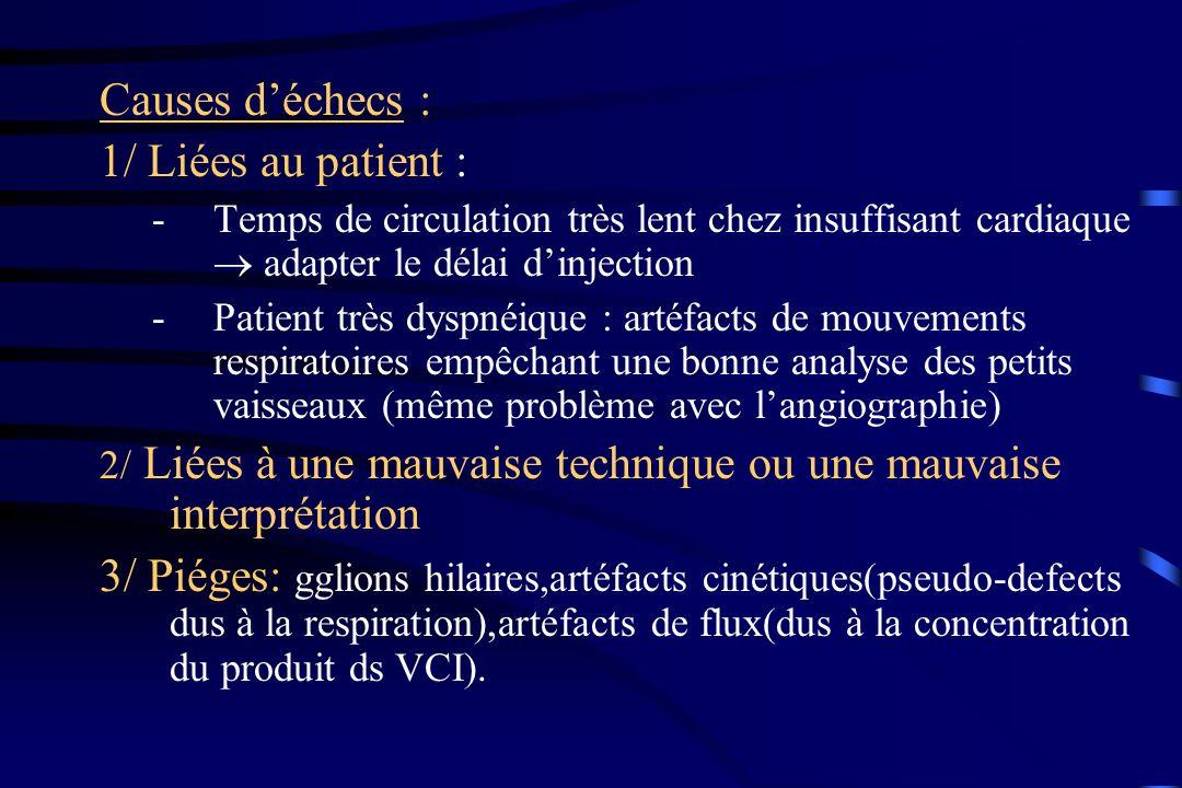 Causes d'échecs : 1/ Liées au patient :
