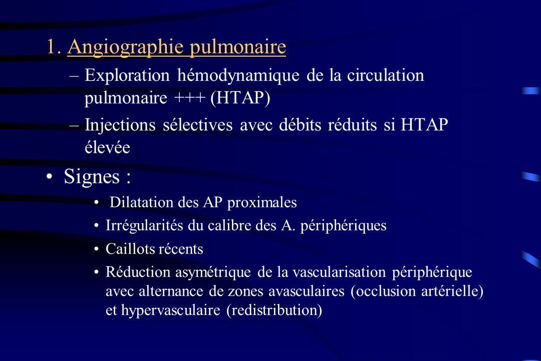 1. Angiographie pulmonaire