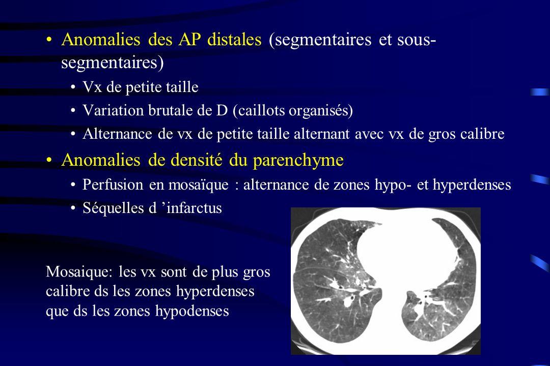 Anomalies des AP distales (segmentaires et sous-segmentaires)