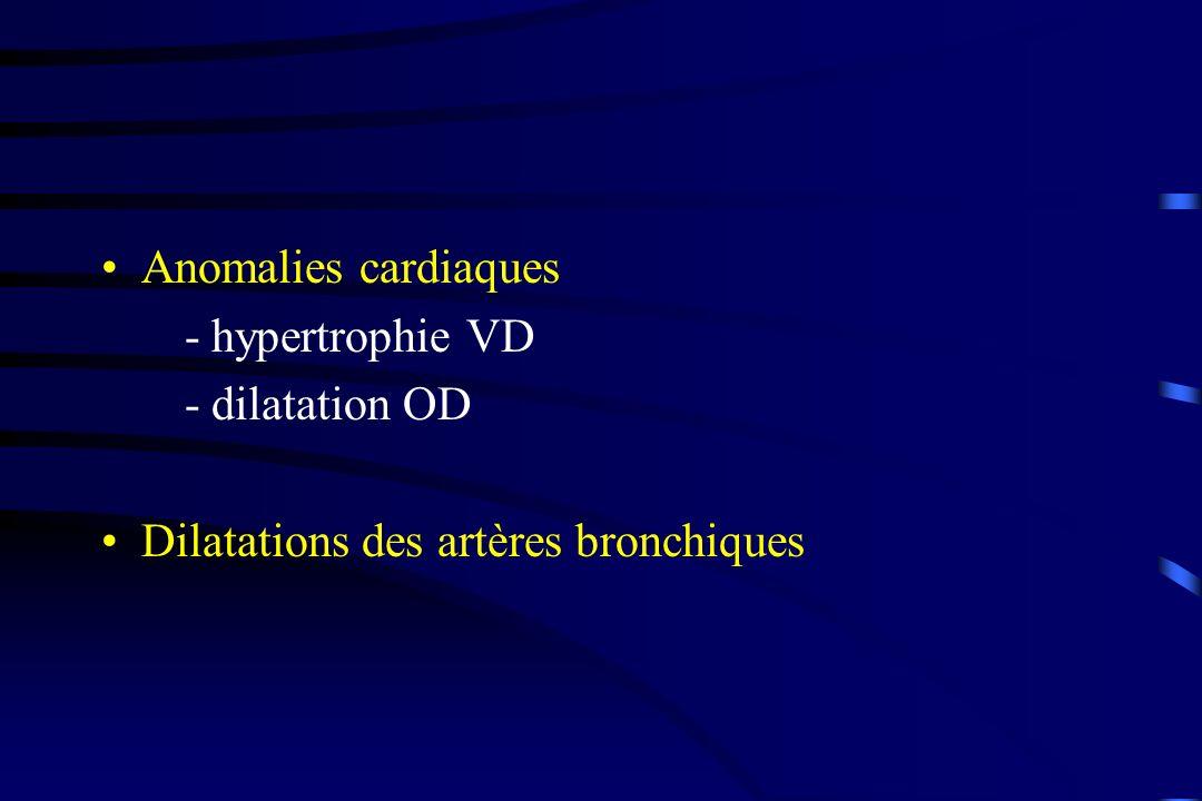 Anomalies cardiaques - hypertrophie VD - dilatation OD Dilatations des artères bronchiques