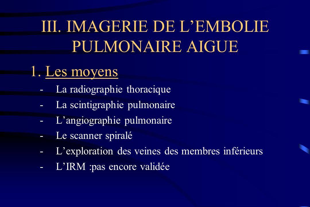 III. IMAGERIE DE L'EMBOLIE PULMONAIRE AIGUE