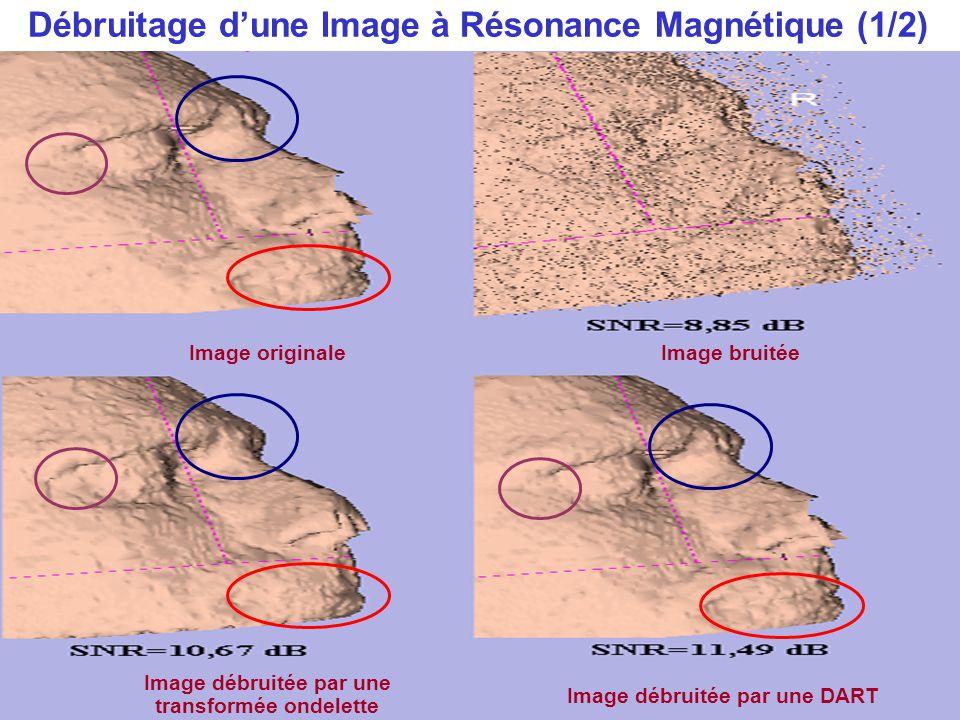 Débruitage d'une Image à Résonance Magnétique (1/2)