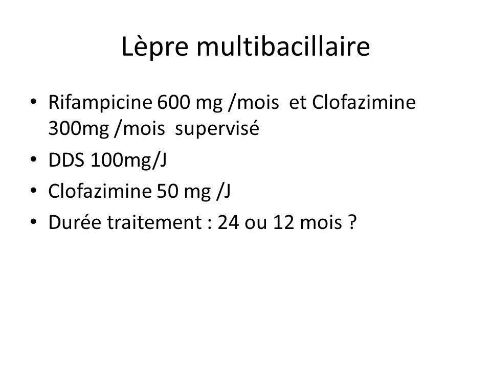 Lèpre multibacillaire