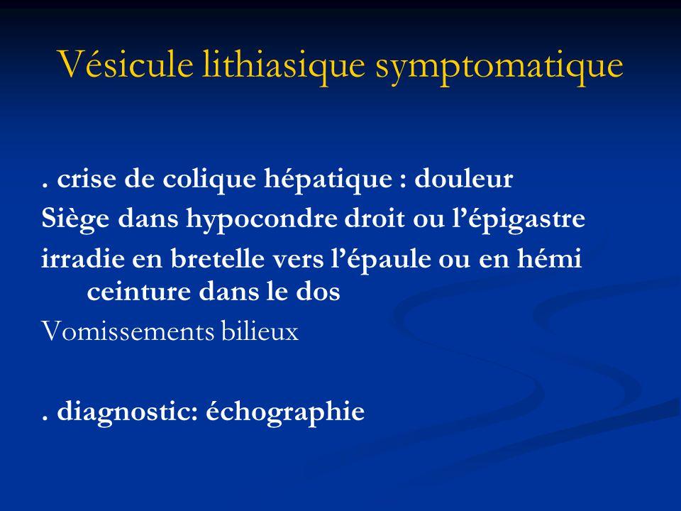 Vésicule lithiasique symptomatique