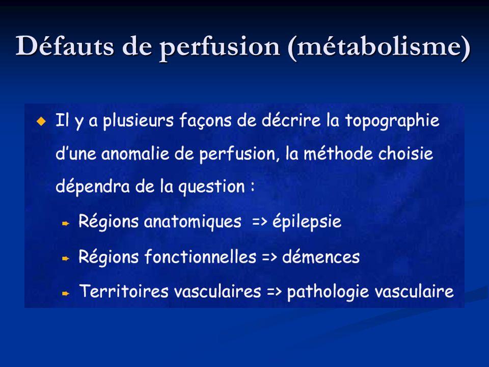 Défauts de perfusion (métabolisme)