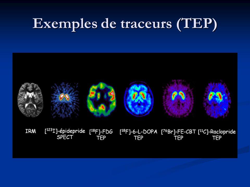 Exemples de traceurs (TEP)