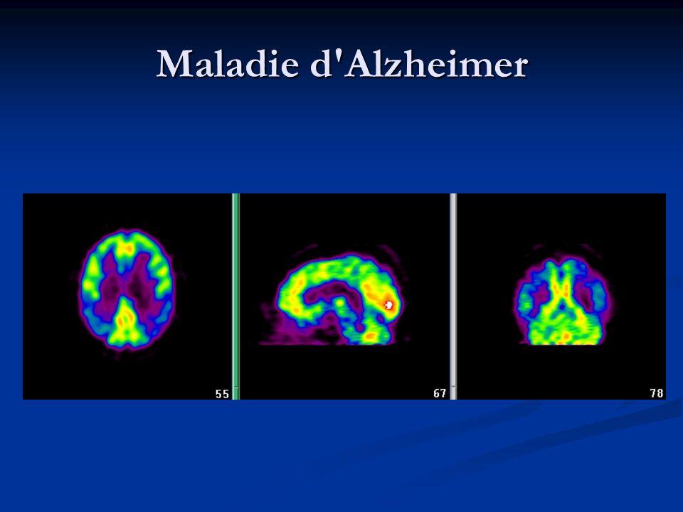 Maladie d Alzheimer