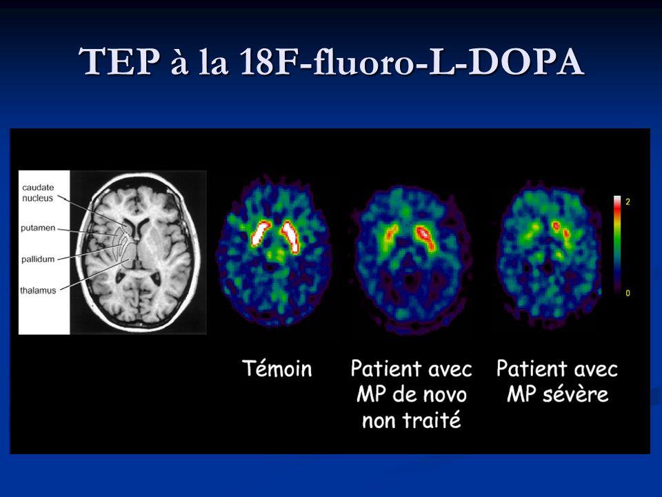 TEP à la 18F-fluoro-L-DOPA