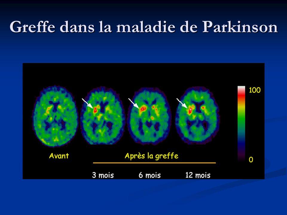 Greffe dans la maladie de Parkinson