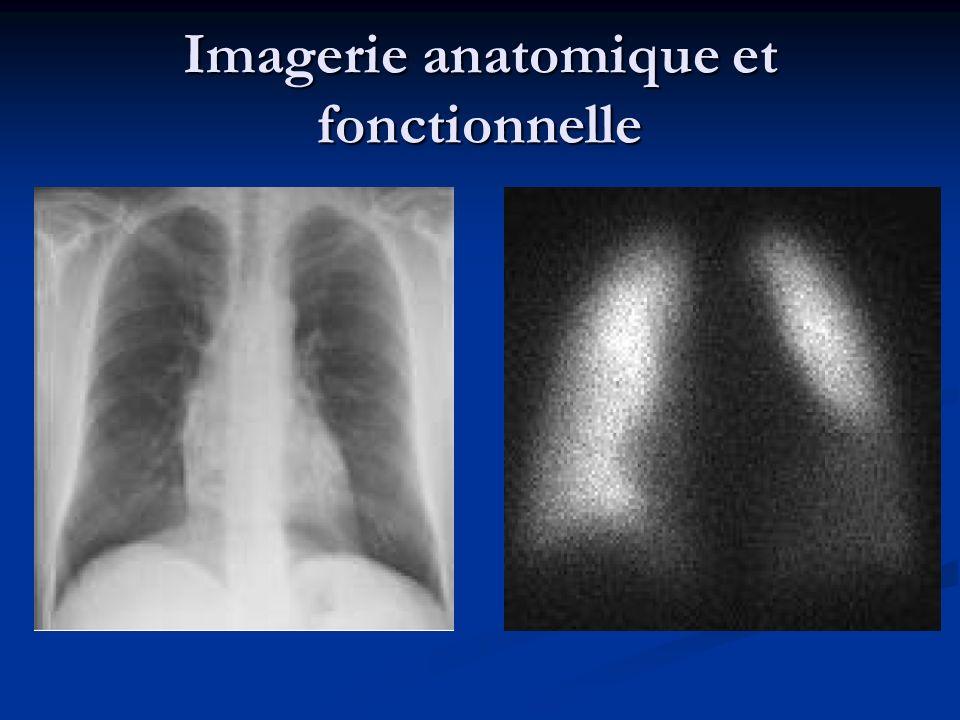Imagerie anatomique et fonctionnelle