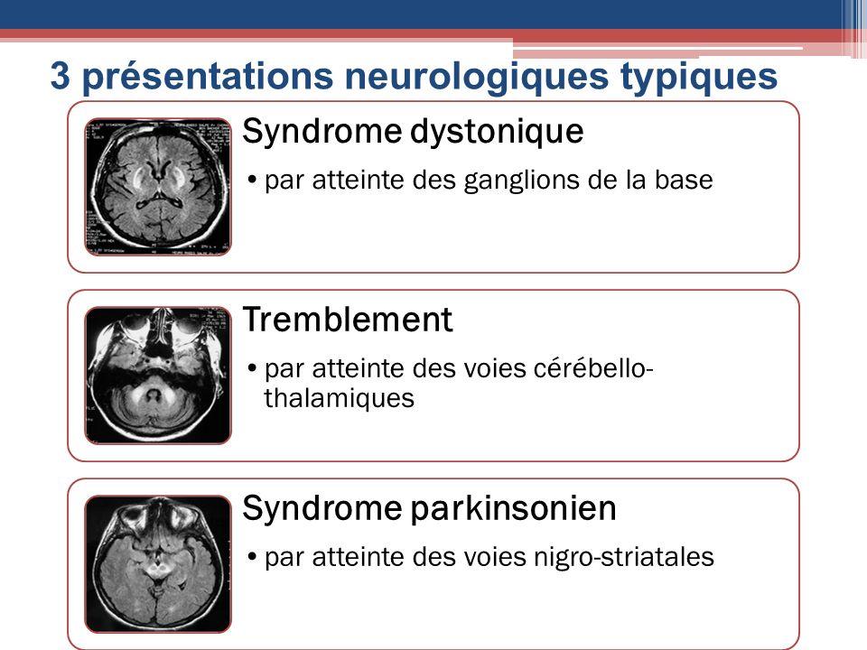 3 présentations neurologiques typiques