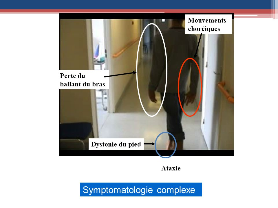 Symptomatologie complexe
