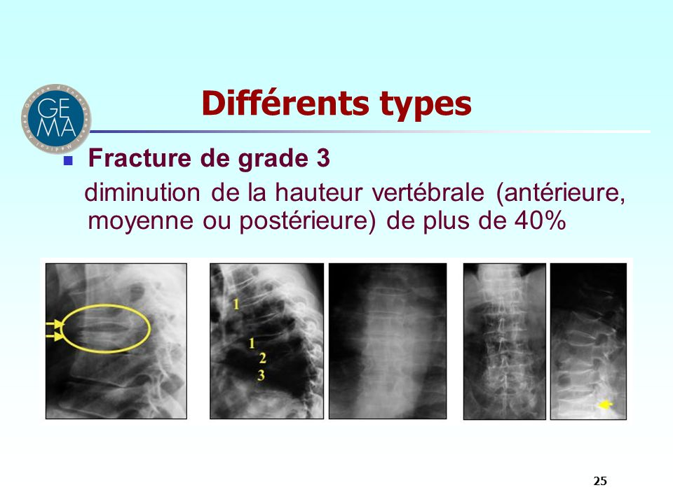 Différents types Fracture de grade 3