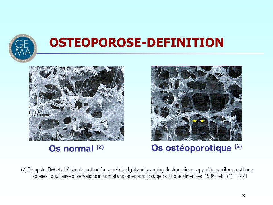 OSTEOPOROSE-DEFINITION