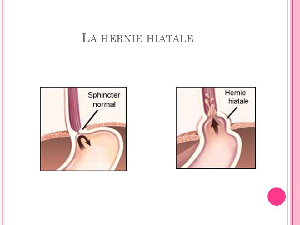 La hernie hiatale