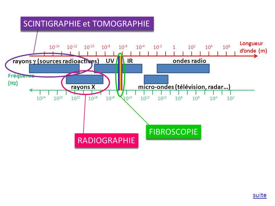 SCINTIGRAPHIE et TOMOGRAPHIE